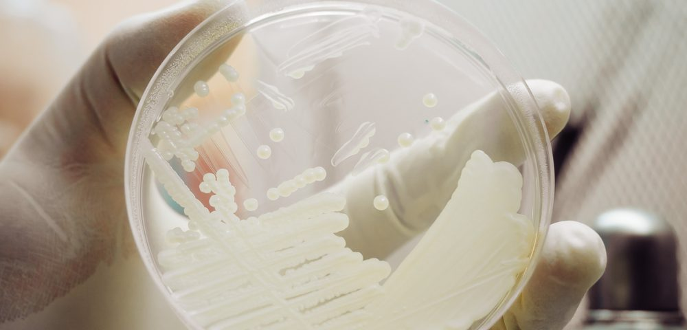 Yeast Models of Batten Disease May Speed Up Treatment Discovery, Researchers Argue